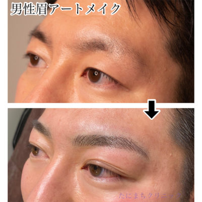 男性 眉アートメイクビフォーアフター