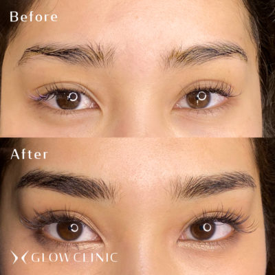 3G BROWS 眉アートメイク ビフォーアフター glow渋谷店