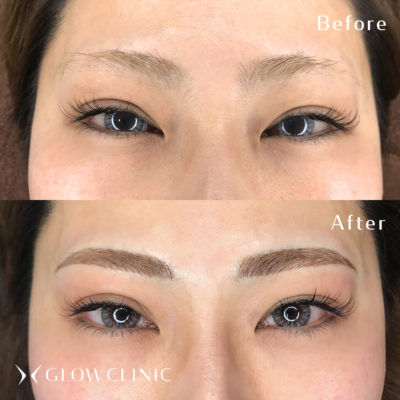3G BROWS 眉アートメイク ビフォーアフター